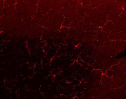Imagen de microscopía que muestra células de la microglía en la corteza del cerebelo de ratón