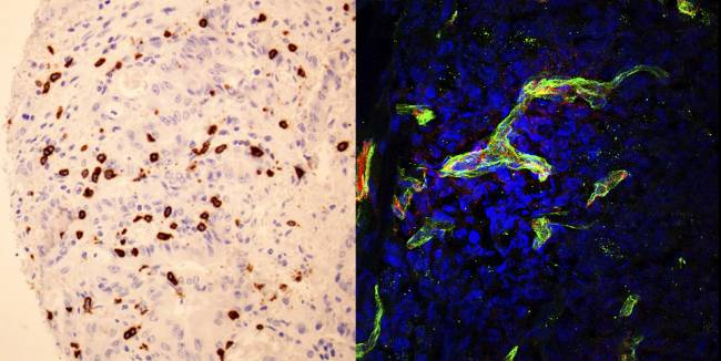 linfocitos y células tumorales