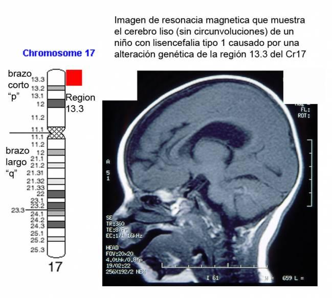 Imagen de resonancia magenética que muestra el cerebro liso (sin circunvalaciones) de un niño con lisencefalia tipo 1 causada por una alteración del cromosoma 17
