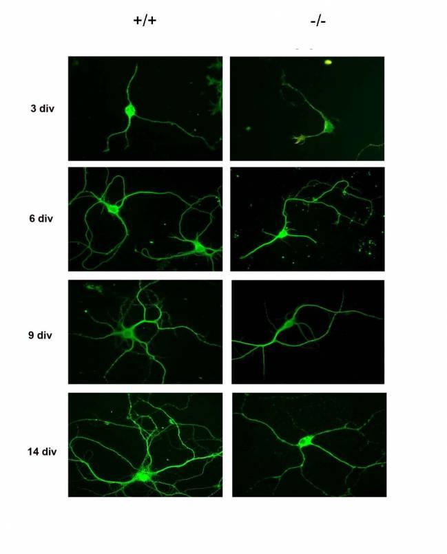 neuronas del hipocampo de un ratón que no expresa la proteína RhoE