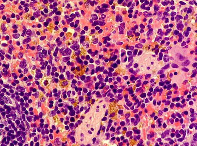 CNIO hemosiderina