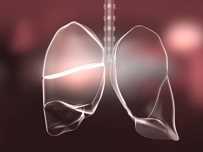 La insuficiencia respiratoria es común en los pacientes críticos y se estima que, alrededor de un tercio, fallece a consecuencia de esta enfermedad