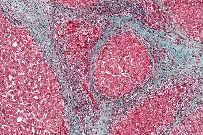 cirrosis hígado