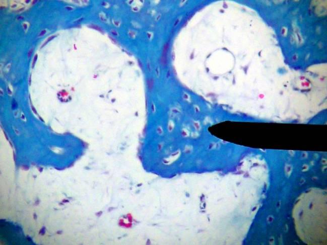 En azul, trabéculas (filamentos óseos que crecen en el interior del hueso)