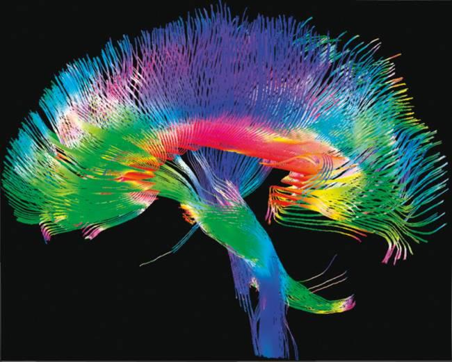 """Mapa detallado de alta resolución de conexiones cerebrales, obtenido por el  """"Human Connectome Project""""."""