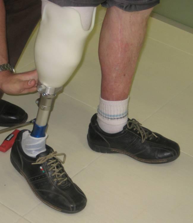 Ejemplo de prótesis personalizada