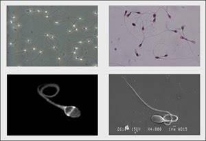 Imágenes de espermatozoides