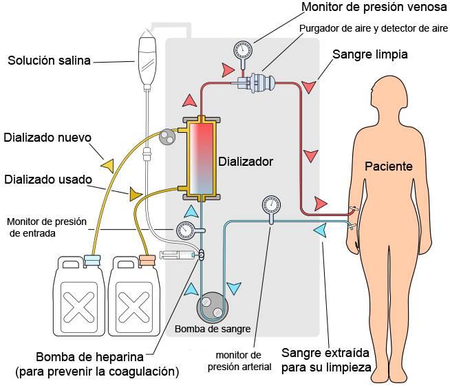 Diagrama esquemático de un circuito de hemodiálisis