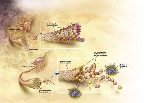 La enfermedad de Alzheimer podría estar provocada por infecciones fúngicas