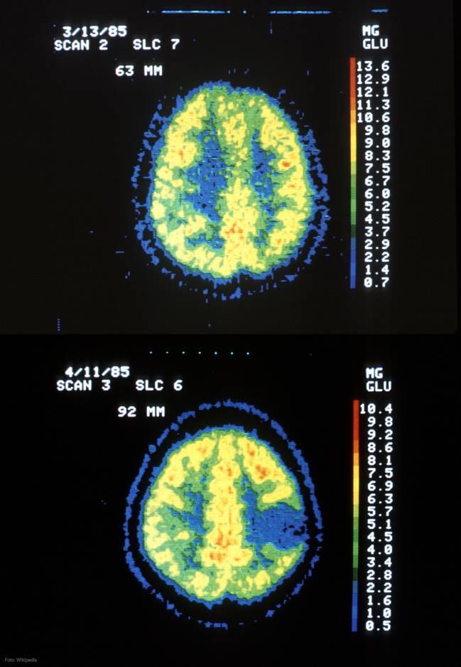 Comparación de un cerebro normal, arriba, y otro afectado por un astrocitoma, abajo, tomada de una tomografía axial computorizada (TAC).