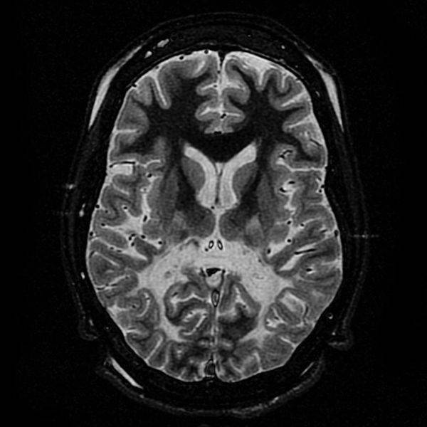 Escáner del cerebro de un paciente con adrenoleucodistrofia. / Wikipedia