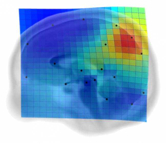 Malla de deformación y mapa de espansión asociadas a la primera componente de variabilidad del plano medio-sagital del cerebro en humanos adultos / E. Bruner
