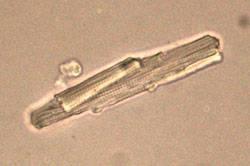 Célula auricular humana