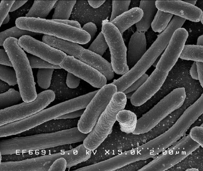 Escherichia coli, una de las muchas especies de bacterias presentes en el intestino humano. Imagen: Wikipedia