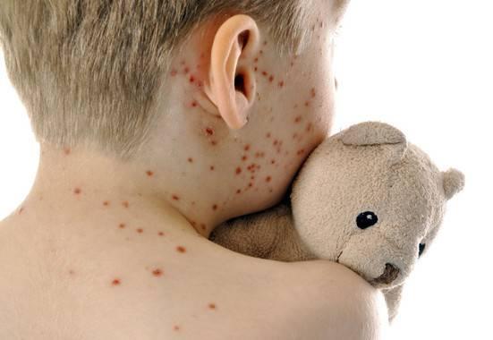 Niño infectado con sarampión