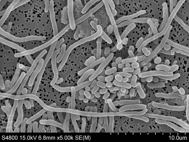 Imagen microscópica de la bacteria Acinetobacter baumannii.
