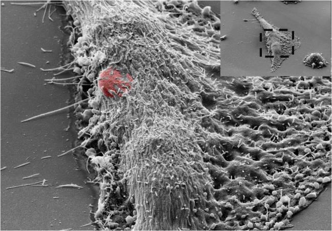 Fotografía SEM de una célula HeLa donde se observa el proceso de introducción de un chip/ Instalación Científico Tecnológica Singular, CNM-IMB.