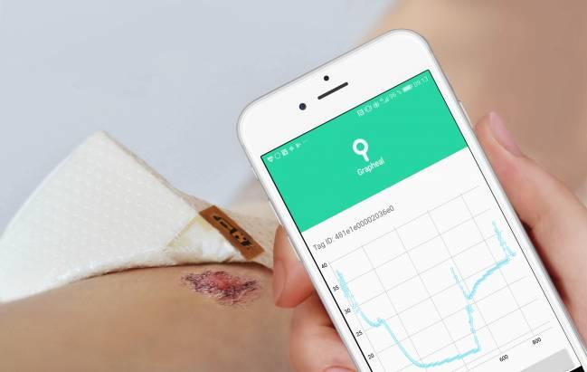 Los datos de la herida recogidos por el parche de grafeno se envían al hospital a través del móvil