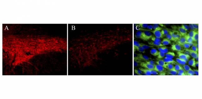 Nueva diana farmacológica para el tratamiento del Parkinson
