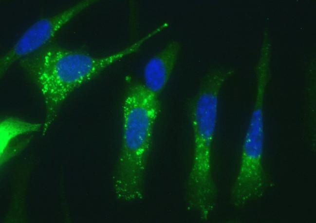 Células de adenocarcinoma pancreático humano