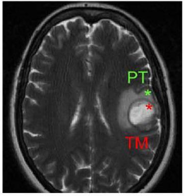 Cerebro afectado por un glioblastoma