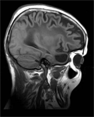 Resonancia magnética del cerebro de un paciente con leucoencefalopatía megalencefálica con quistes subcorticales (MLC).