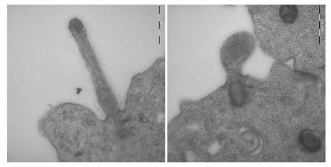 Imágenes de microscopía electrónica