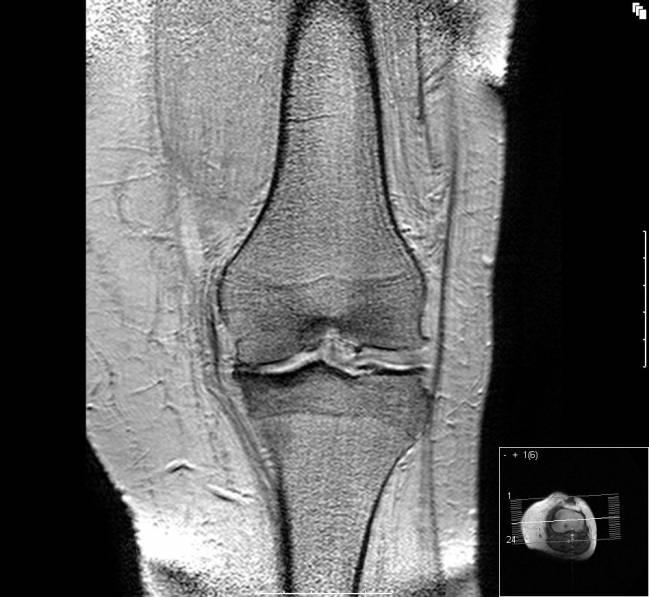 La artrosis es una enfermedad evolutiva y cambiante
