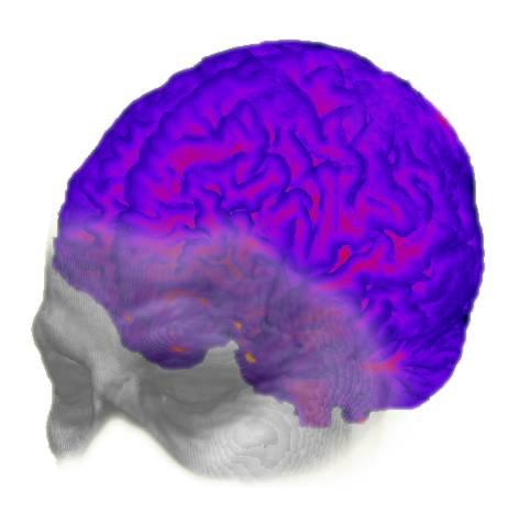 Representación evolutiva del cerebro
