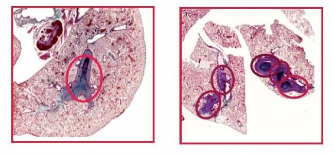 La falta de una proteína hace los tumores más agresivos