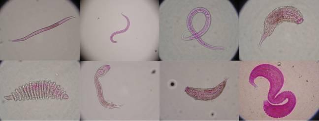 Imagen al microscopio de varios de los organismos que viven en el sedimento del fondo marino. Imagenes: Cristina Gambi / Universidad Politécnica de Marche