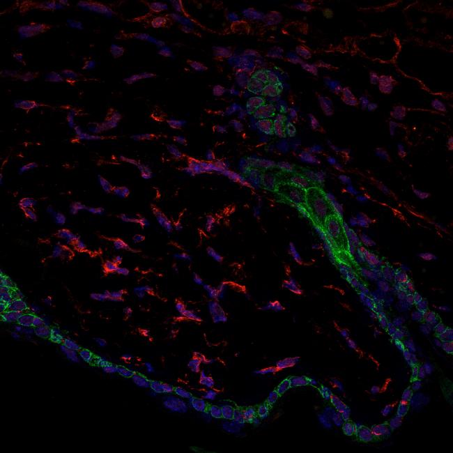 barrera de la piel (en verde), folículo piloso (en verde) y los fibroblastos (en rojo)