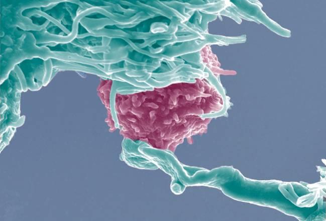 Histología de muestras de colon de ratones en condiciones basales o varios días después de ser tratados con el agente inductor de colitis DSS (inflamatorio). Las preparaciones corresponden a ratones normales (WT) o ratones mutantes que carecían de NFAT5 en linfocitos T (KO). Imagen cedida por los autores (DCEXS-UPF)