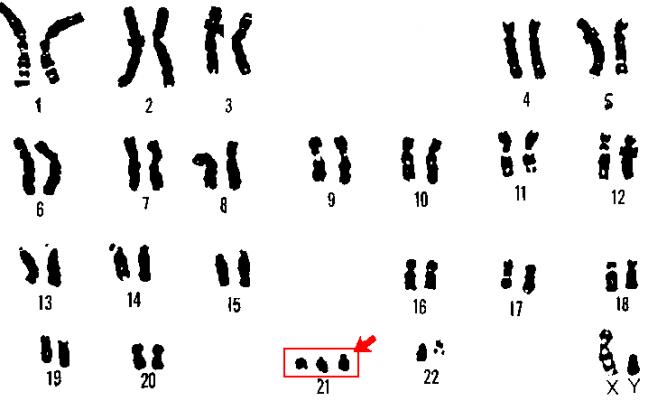Sobre expresión del Gen DYRK1A