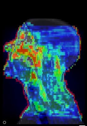 Visualización de la simulación de las dosis recibidas por un paciente oncológico