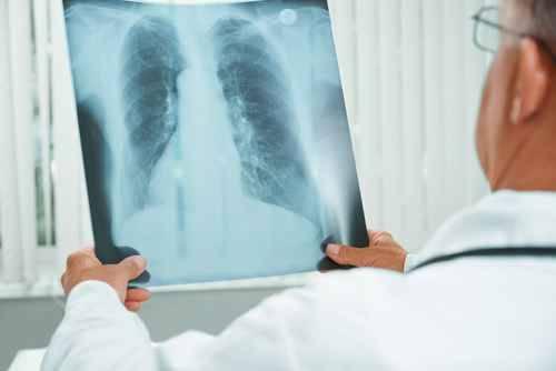 La hipertensión pulmonar es una enfermedad que se caracteriza por el aumento anómalo de la presión sanguínea. / Fotolia