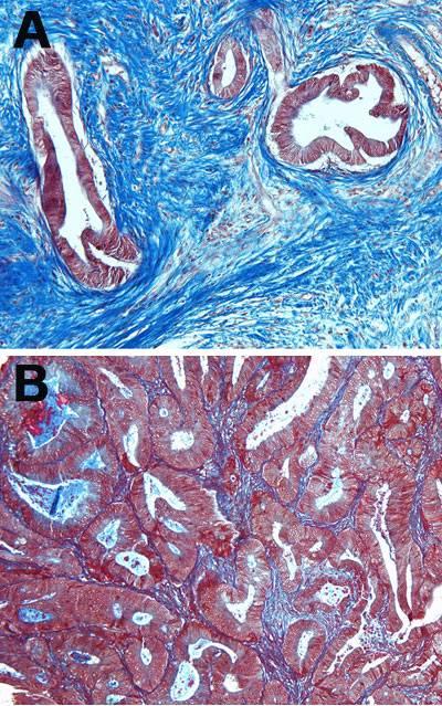 Células tumorales y estroma