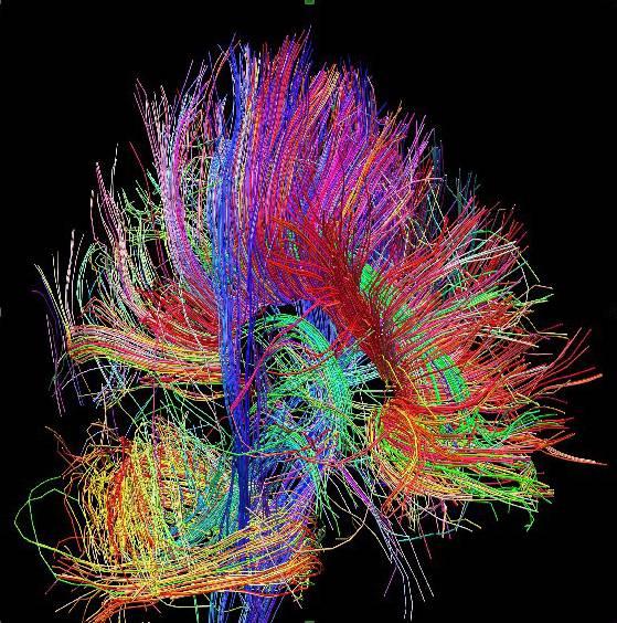 Arquitectura de las fibras de materia blanca, que informa acerca de la relación entre regiones cerebrales, cortesía del proyecto Human Connectome.