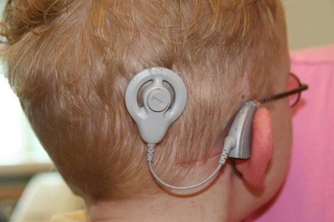 El beneficio de los implantes cocleares depende, entre otros factores, de la edad de implantación. / Ryanjpoole.