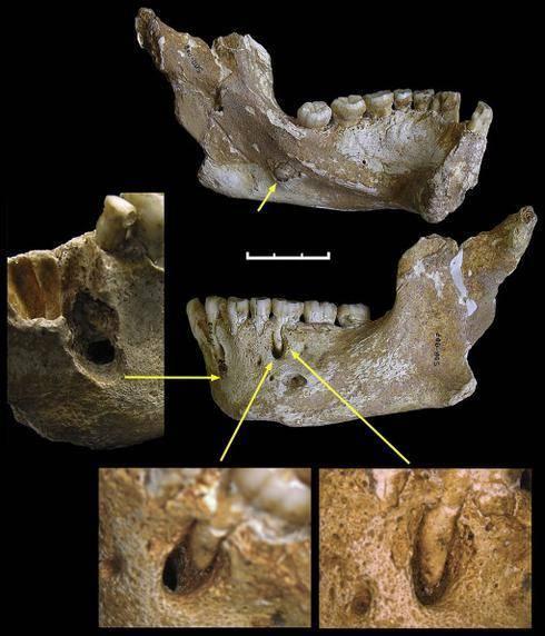 Marcas en los dientes que demuestran el uso preferente de la mano. / PLoS One