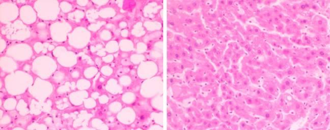 Suplementos adelgazantes y daños hepáticos