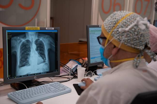 personal sanitario viendo una radiografía de pulmón