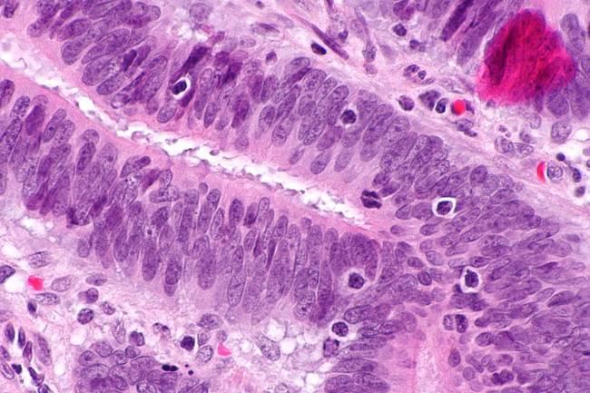 Micrografía que muestra linfocitos infiltrantes del tumor (de un cáncer colorrectal), un hallazgo asociado con tumores MSI-H, como es el caso del síndrome de Lynch. / Wikipedia