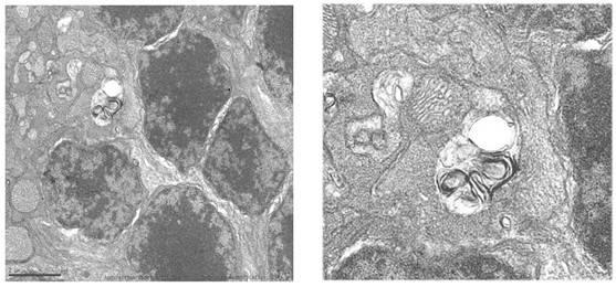 Acumulación de autofagosomas en retinas de ratones deficientes en Igf1