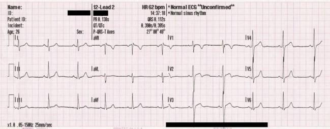 Electrocardiograma. / Wikipedia