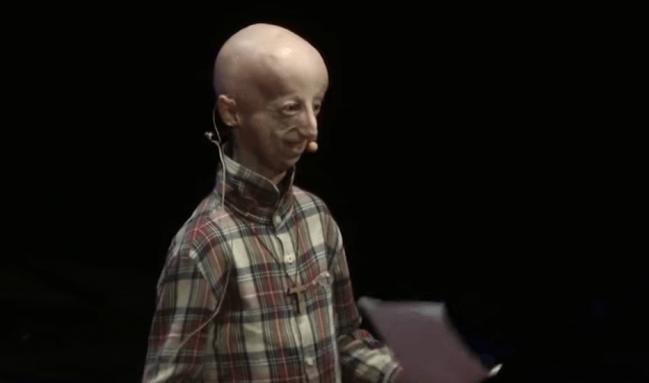 núcleos progeria