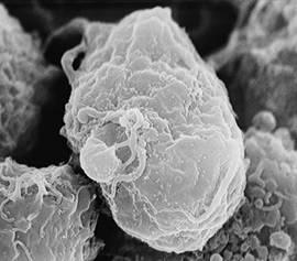 Las citoquinas (en la imagen), son unas proteínas que ayudan a activar la respuesta del sistema inmunitario. Los compuestos desarrollados estimulan y modulan la producción de citoquinas.