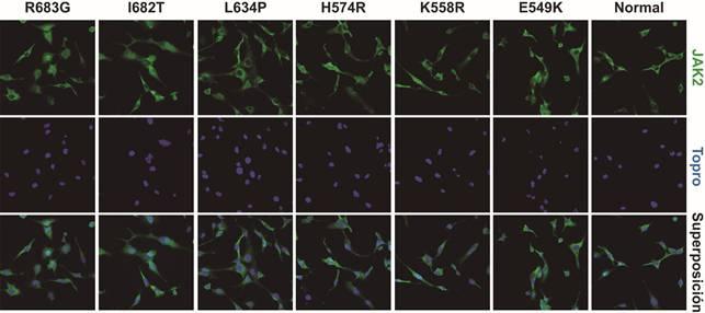 Nuevas vías en el tratamiento de la leucemia/linfoma linfoblástico T