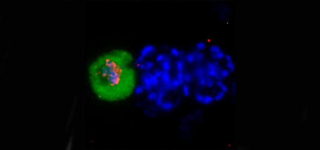 esquizontes multinucleados (núcleos múltiples en azul)