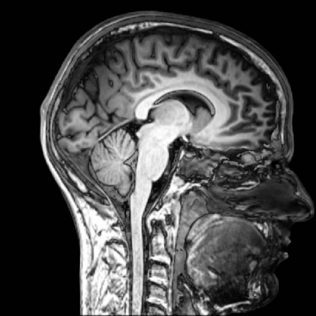 Imagen por resonancia magnética del cerebro. / Everyone's idle